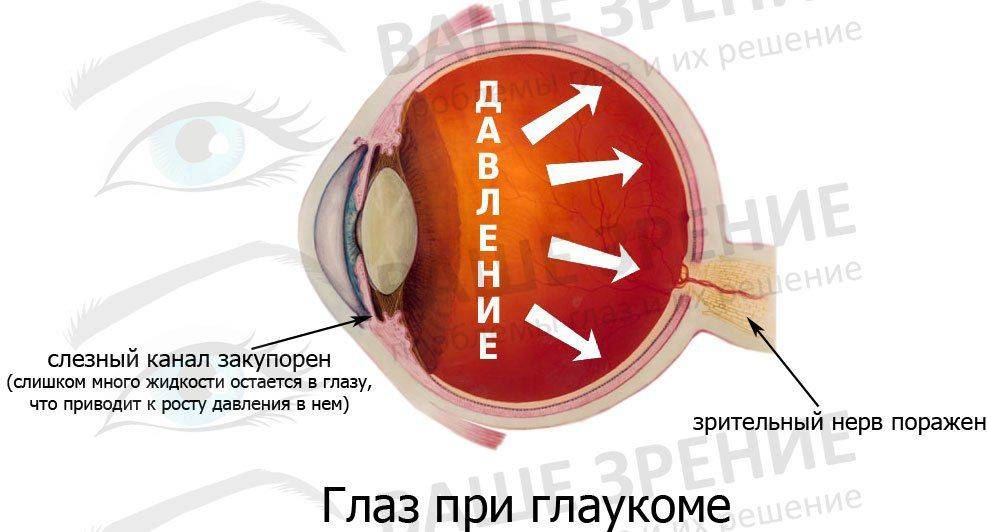 холестерин глазу лечение