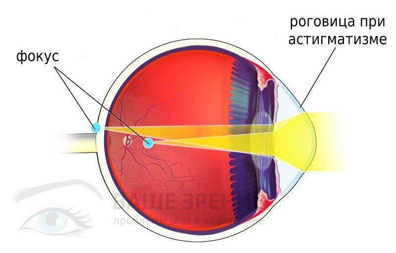 Строение глаза при астигматизме