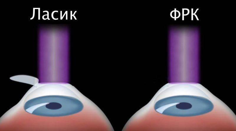 Отличия Ласик и ФРК
