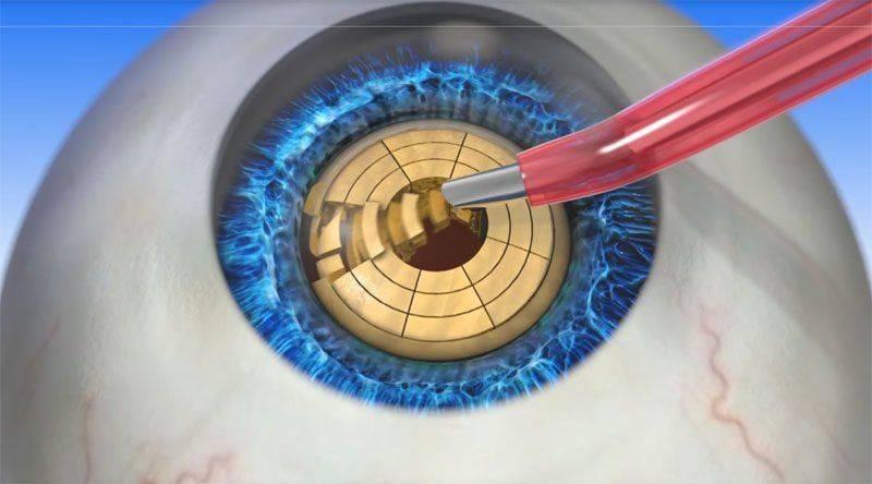 Как удаляют катаракту лазером