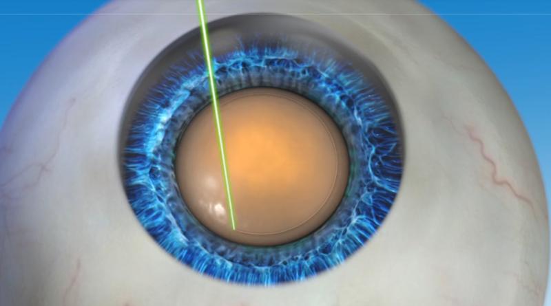 Лазерная коррекция: ход операции