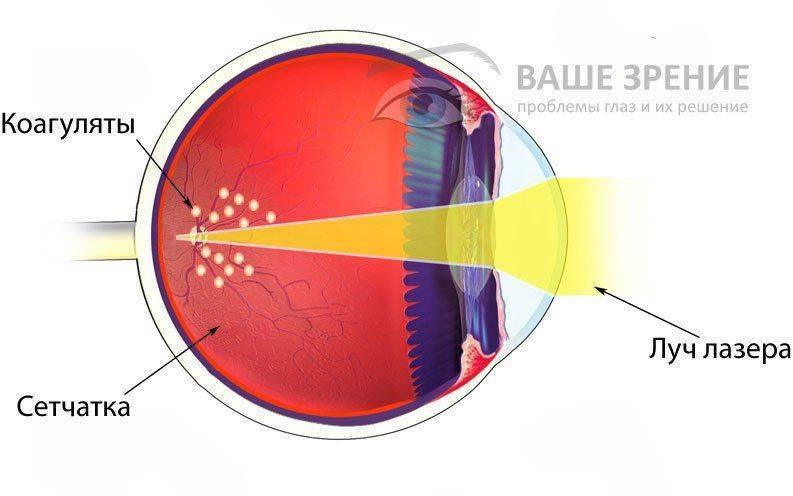 Схема лазерной коагуляции