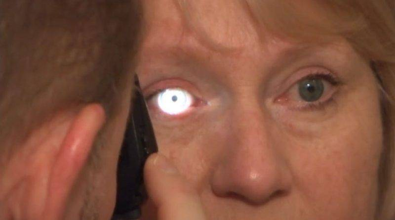 Осмотр глаза