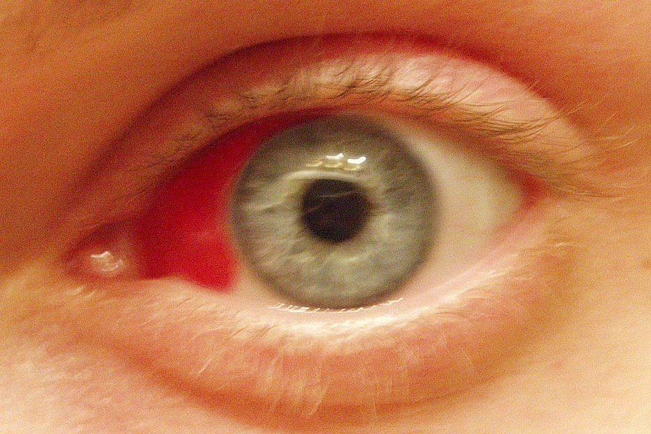 Лопнувший сосуд в глазу