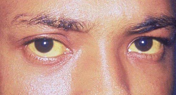 Желтизна в глазу