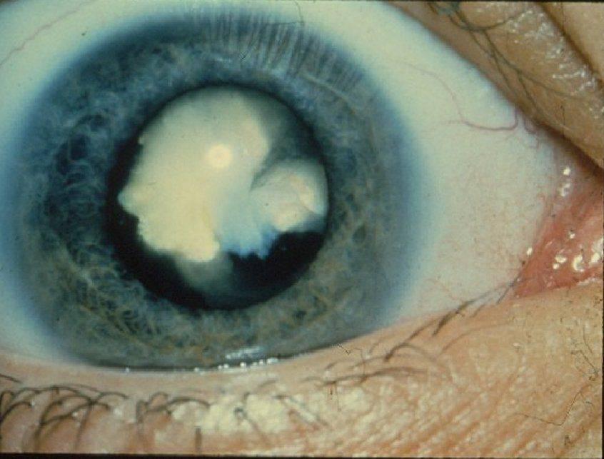 Начинающаяся катаракта