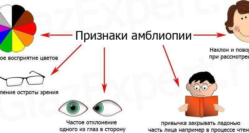 Особенности амблиопии