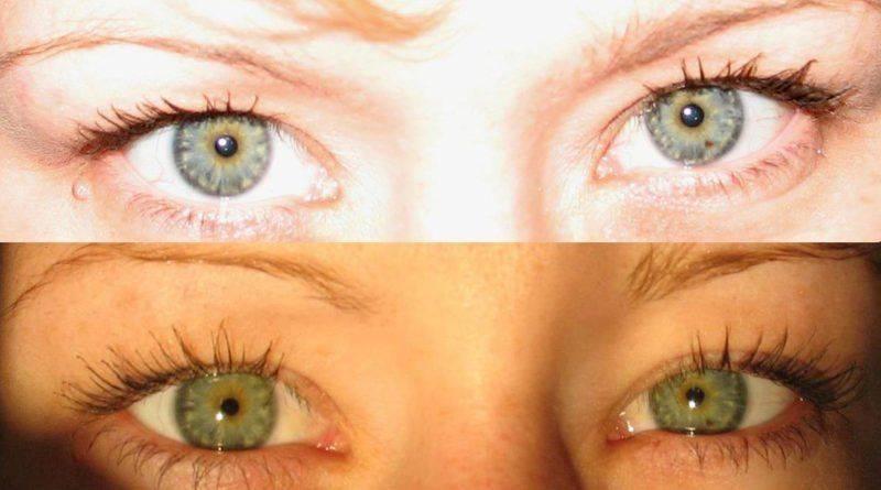 Глаза-хамелеоны у человека