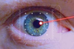 Лечение глаза лазером