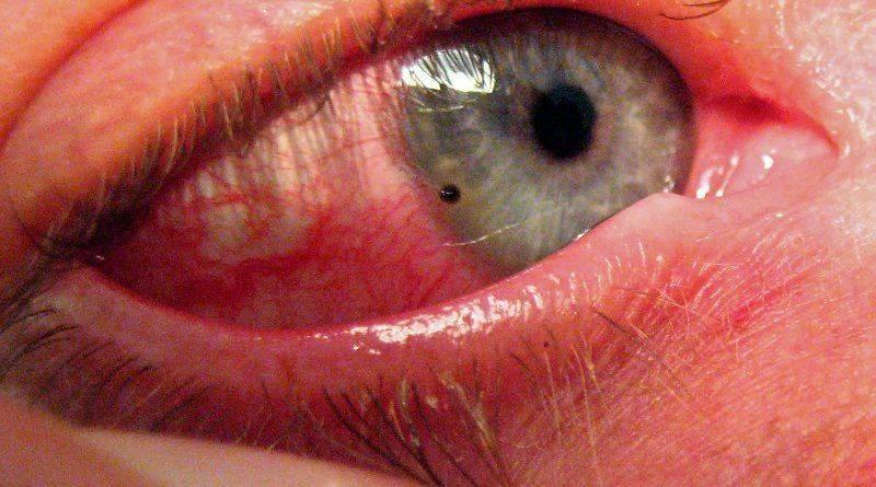 Как выглядит посторонний предмет в глазу