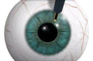 Кератотомия глаза