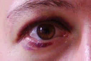 Контузия глаза: как выглядит