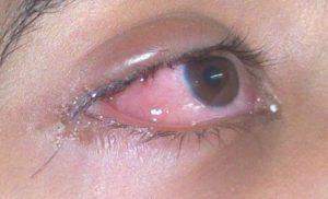 Глазной отёк