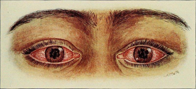 Сифилитический хориоидит