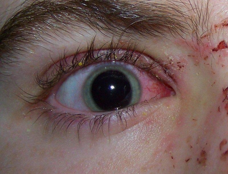 Глазная травма приводит к расширению зрачка
