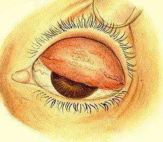 Что такое трахома глаза?