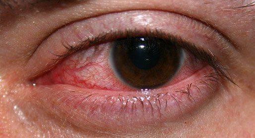 Кератит на глазу