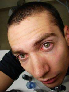 Раздражённые глаза