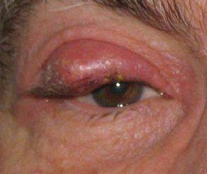 Вид халязиона