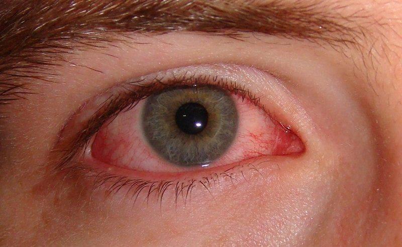 Песок в глазах: причины