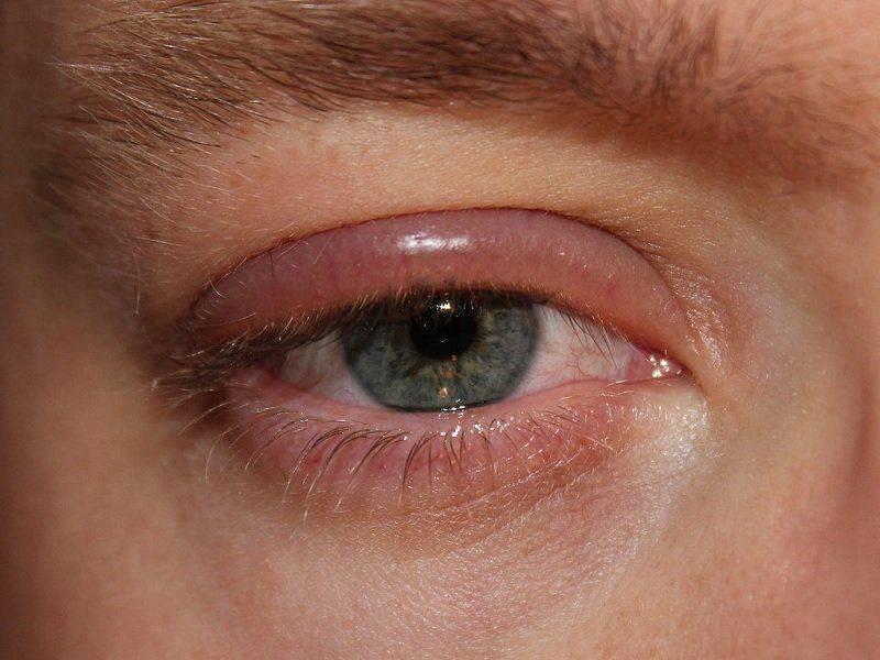 Глазной блефарит