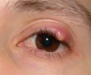 Уплотнение на верхнем веке глаза: халязион