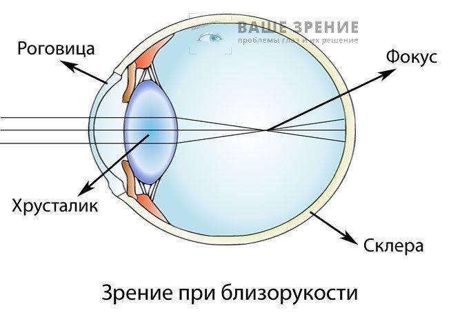 Как выглядит глаз при близорукости