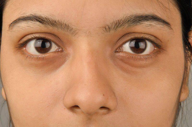 Девушка с мешками под глазами