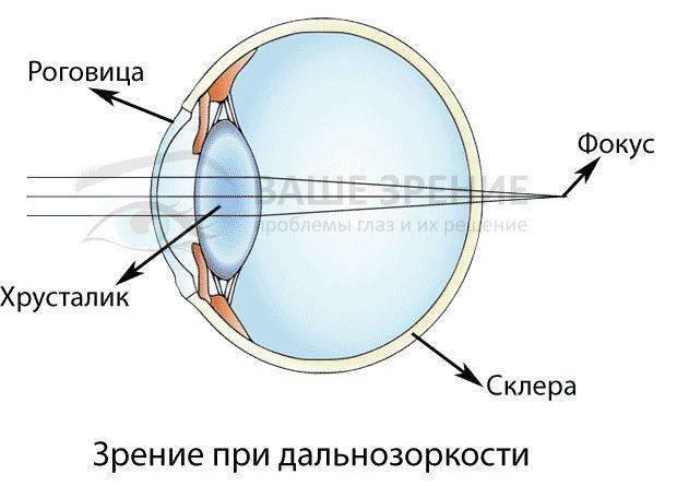 Глаз с дальнозоркостью