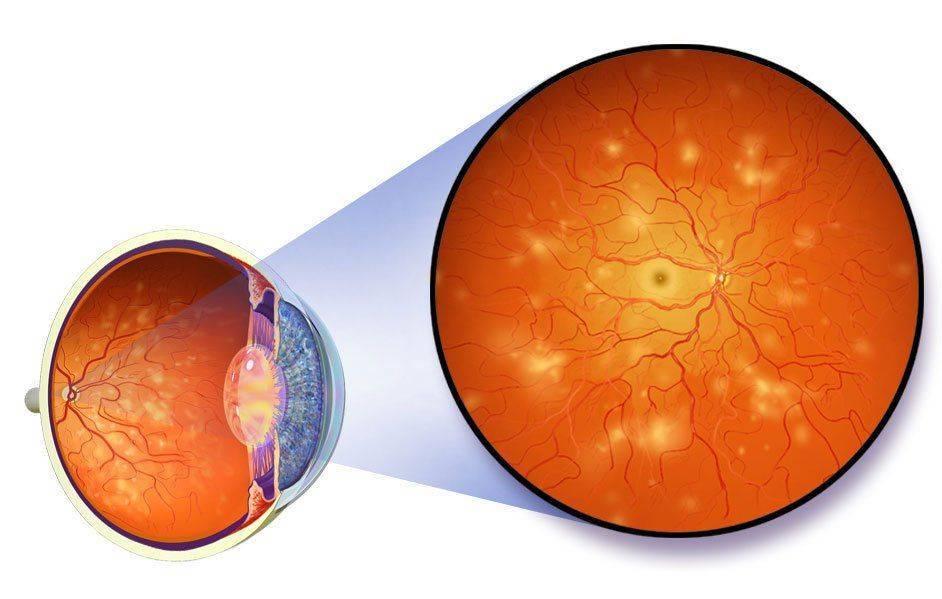 Диабетическая ретинопатия: что такое