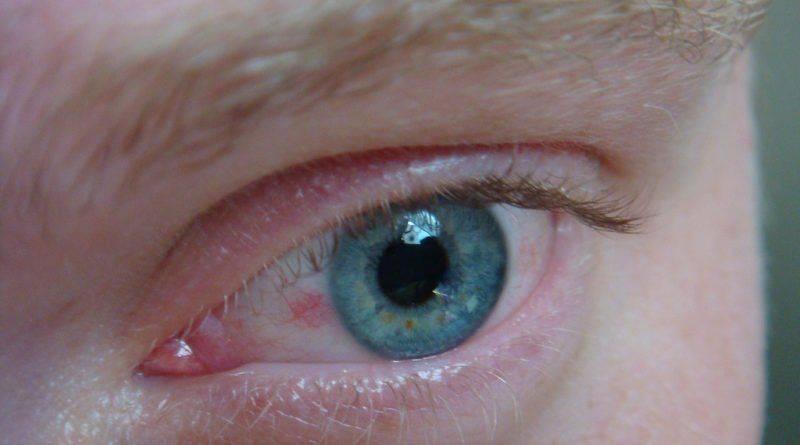 Боль в глазу и покраснение