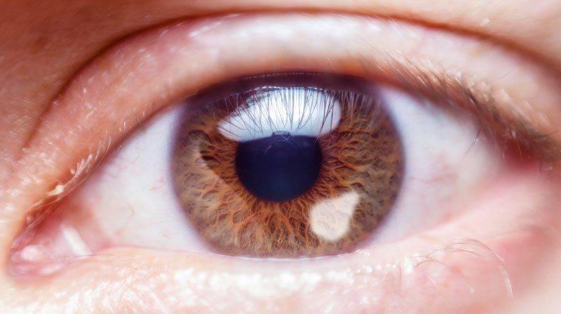 Бельмо на глазу: вид