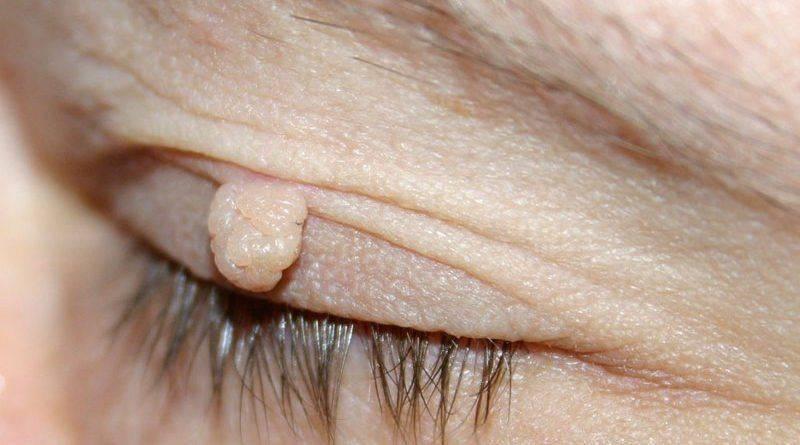 Как может выглядеть бородавка на глазу