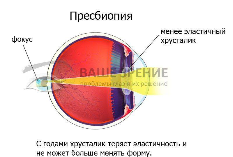 Глаз при персбиопии