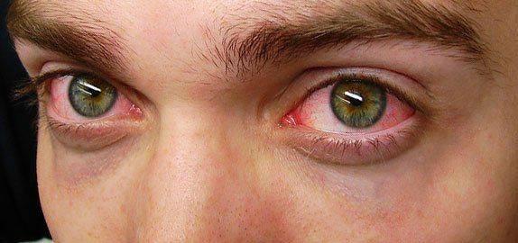 Покрасневшие и уставшие глаза