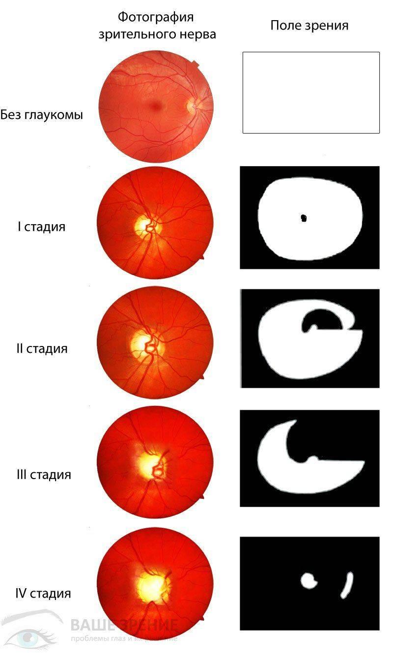 Все стадии глаукомы