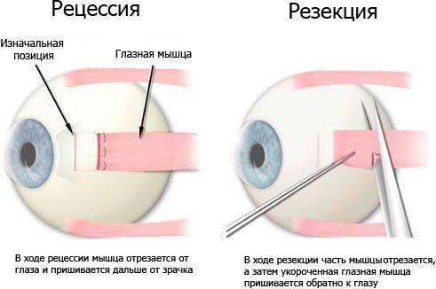 Операции при косоглазие