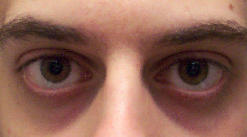 Как выглядят запавшие глаза