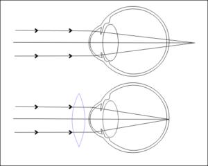 Анизометропия глаз