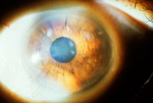 Дистрофия роговицы глаза