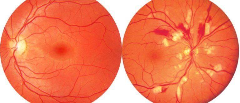 Гипертонический ангиосклероз сетчатки глаза мкб 10