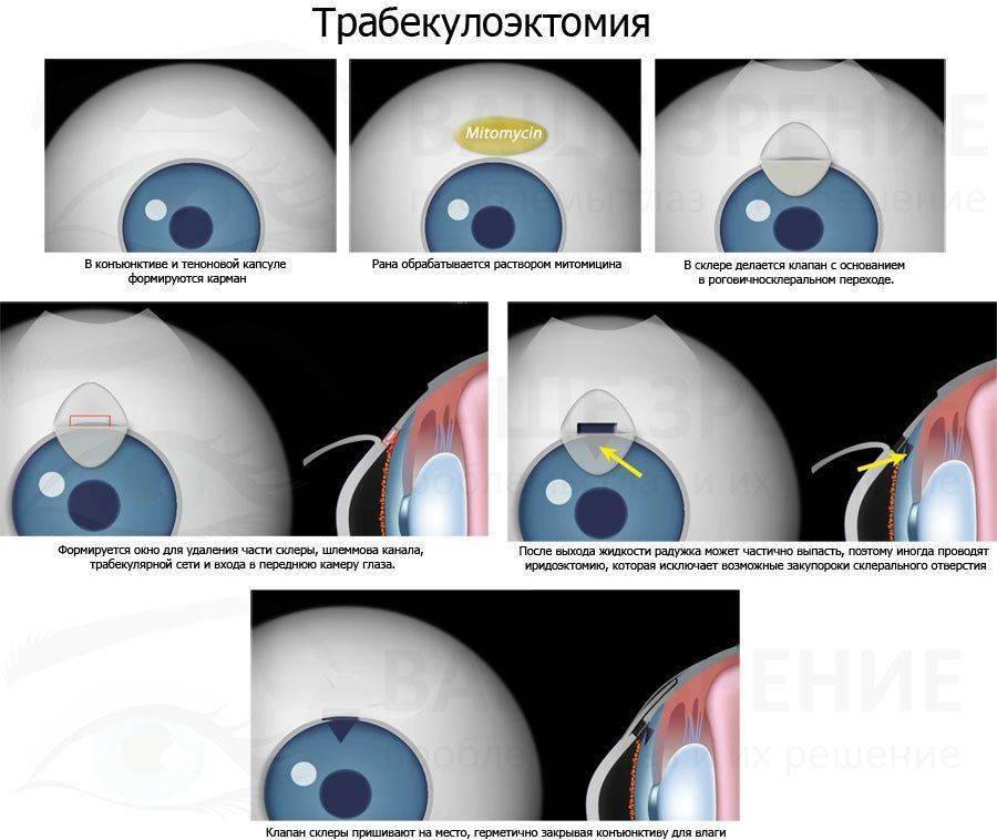 Схема трабекулэктомии