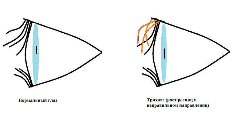 Схема трихиаза