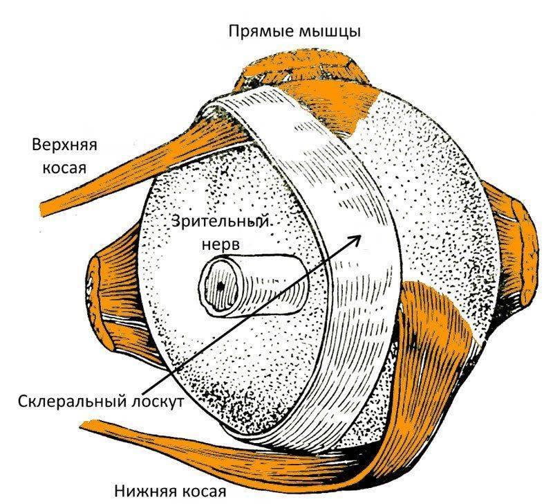 Схема упрощенной склеропластики