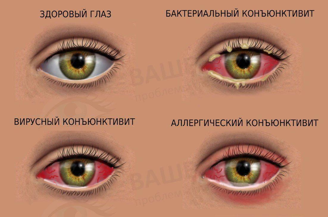Три вида конъюнктивита и норма